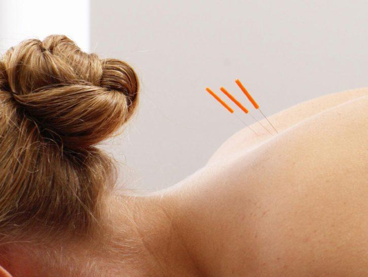 Agopuntura: 6 buoni motivi per sceglierla