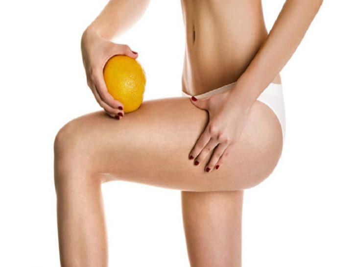 Cellulite: una questione di microcircolo