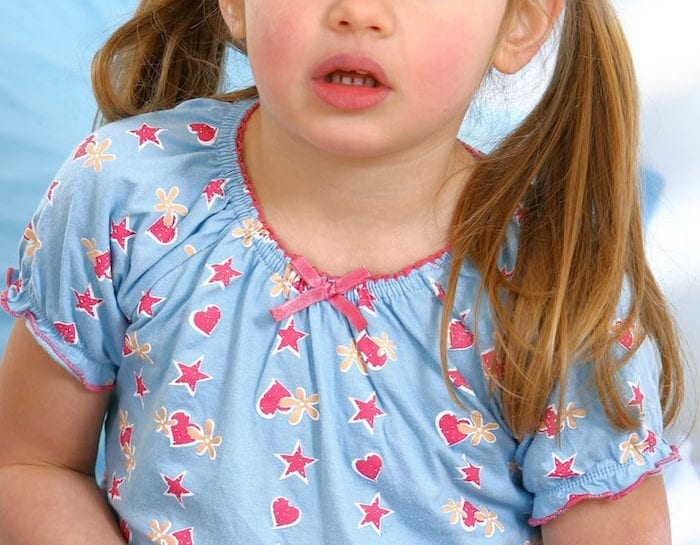 Acetone dei bambini: sintomi e cure