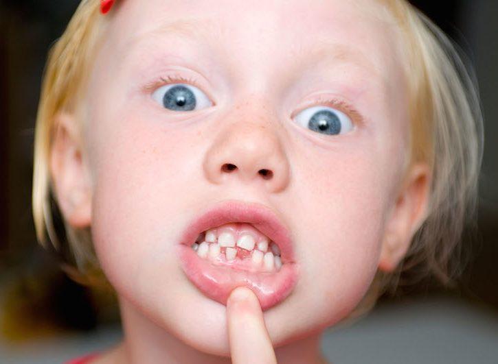 Denti da latte, caduta e cura