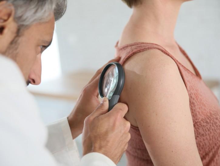 dermatologo osserva neo per scoprire melanoma