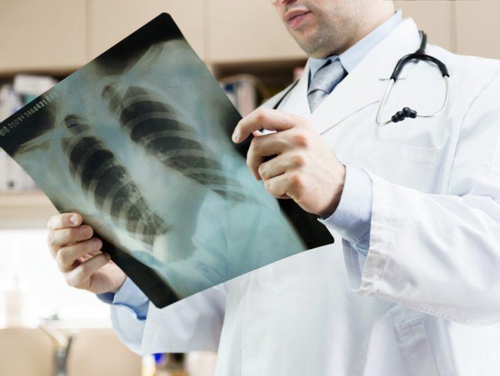 Polmonite: cause, sintomi e rimedi