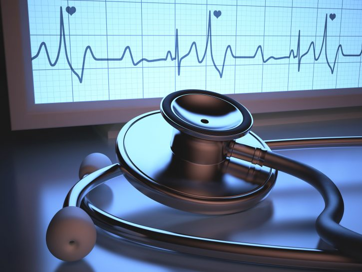 Ischemia cardiaca