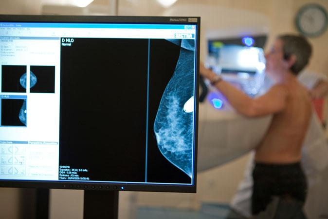 donna che fa mammografia