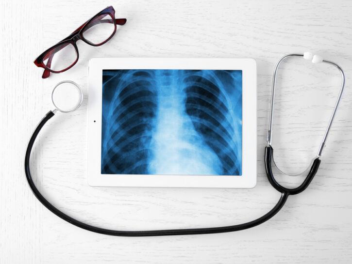 radiografia torace