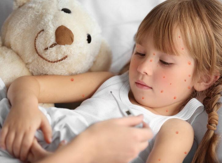 Malattie esantematiche: come riconoscerle