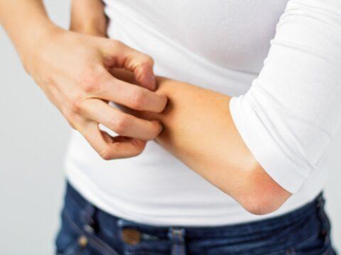 Allergia Al Nichel Le Cure Dolci Donna Moderna