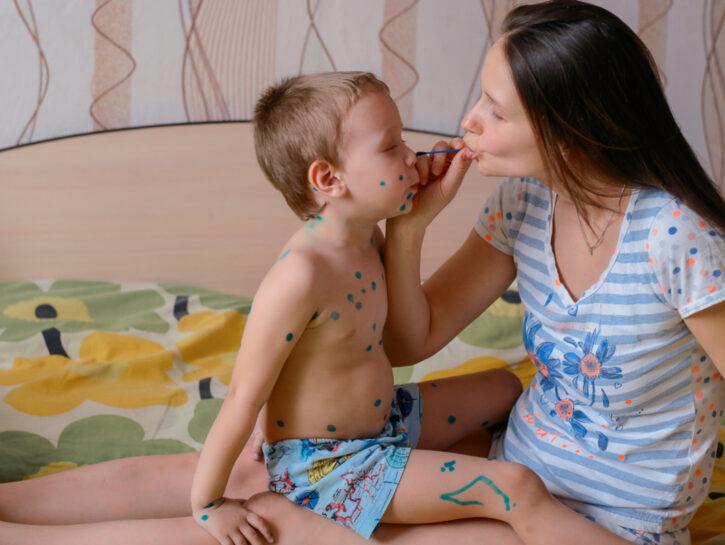 vaccinazioni varicella