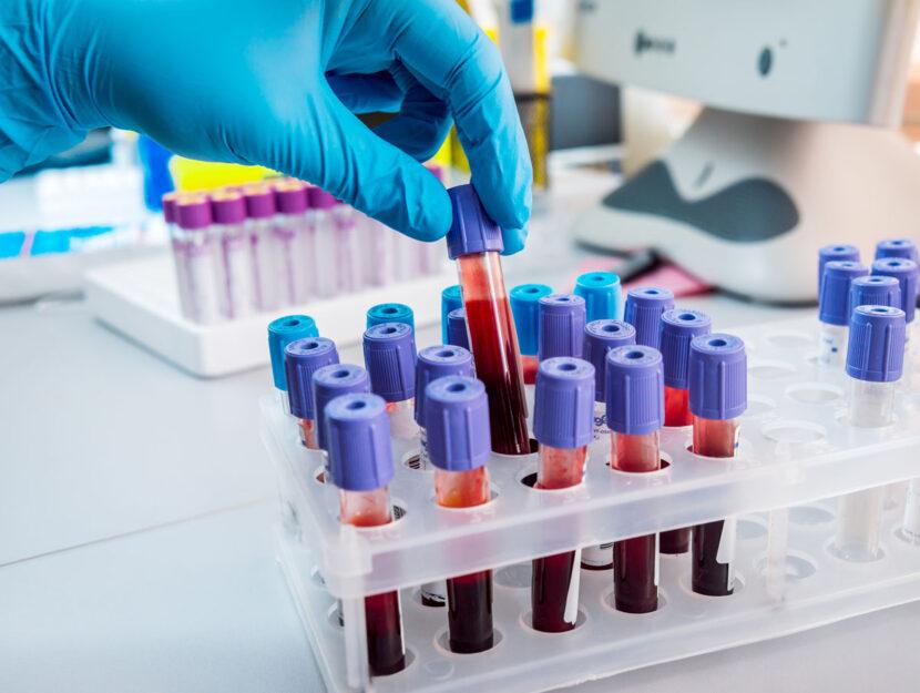 Analisi del sangue provette mano